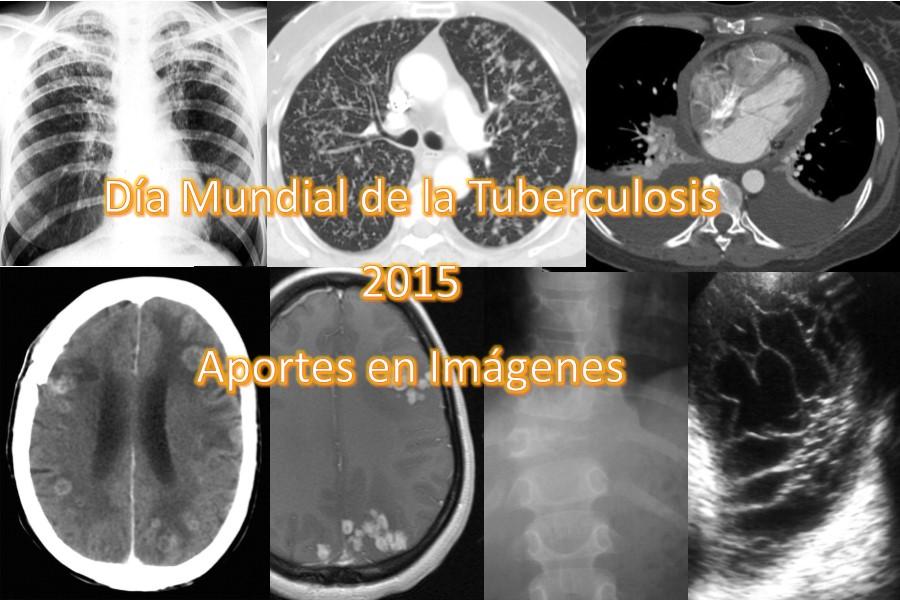 portada tb 2015