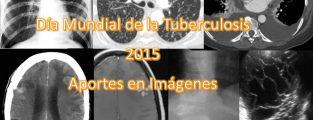 Día Mundial de la Tuberculosis, 2015. Aportes en Imágenes